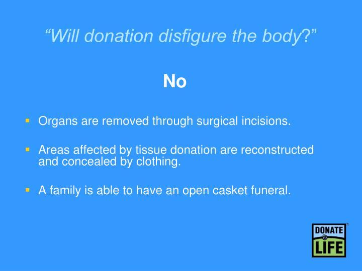 """Will donation disfigure the body"
