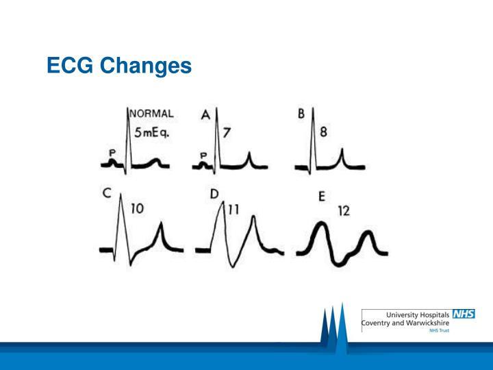 ECG Changes