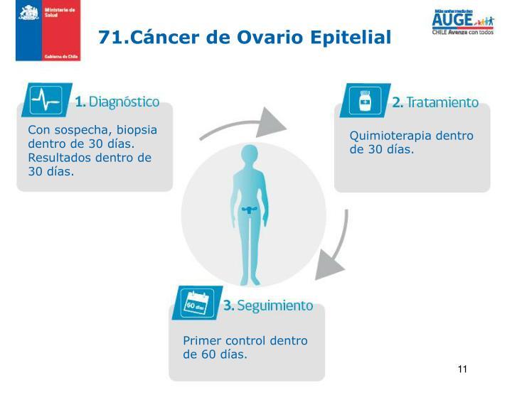 71.Cáncer de Ovario Epitelial
