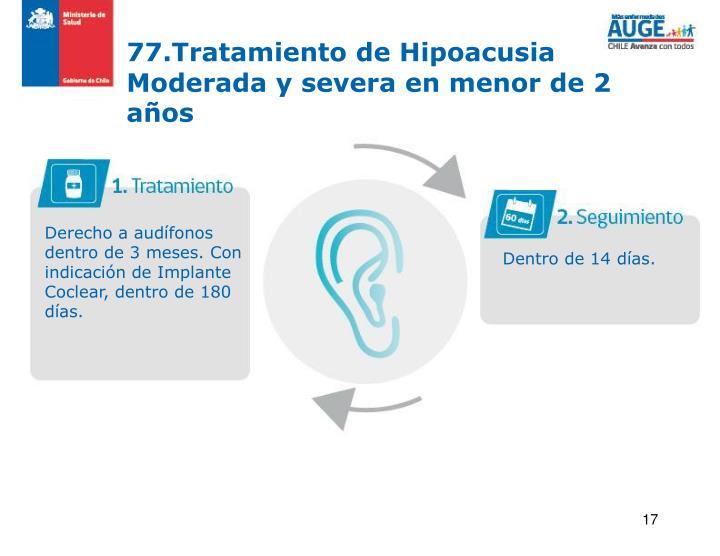 77.Tratamiento de Hipoacusia Moderada y severa en menor de 2 años