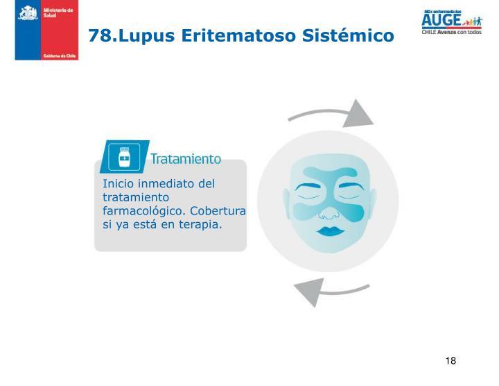 78.Lupus Eritematoso Sistémico
