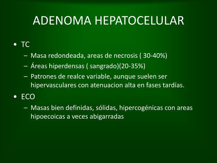 ADENOMA HEPATOCELULAR