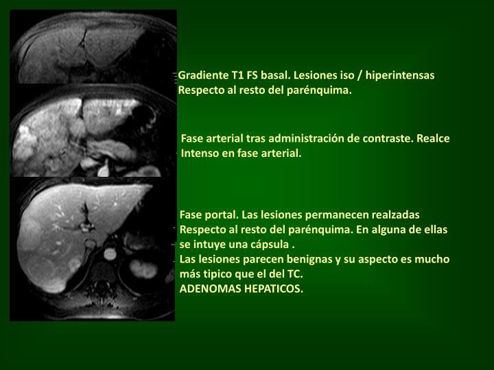 Gradiente T1 FS basal. Lesiones iso / hiperintensas