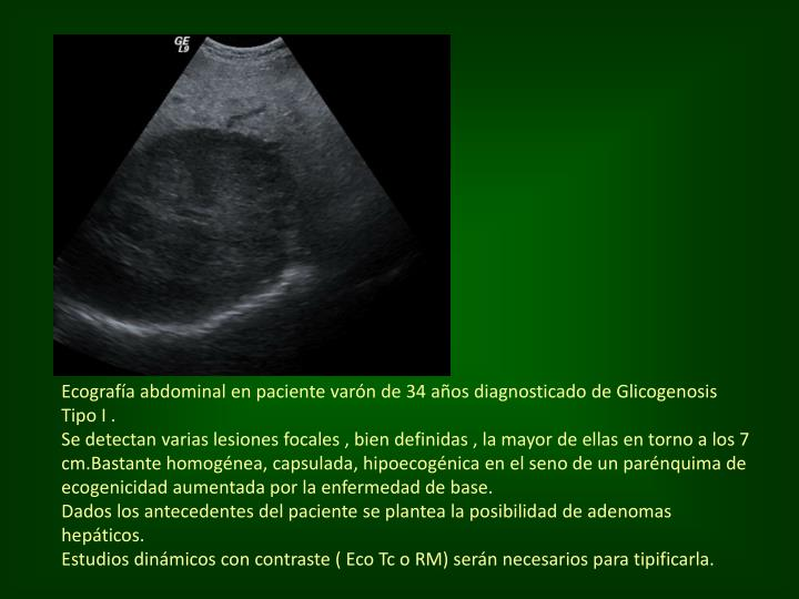 Ecografía abdominal en paciente varón de 34 años diagnosticado de Glicogenosis