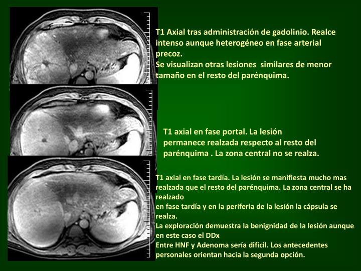 T1 Axial tras administración de gadolinio. Realce intenso aunque heterogéneo en fase arterial precoz.