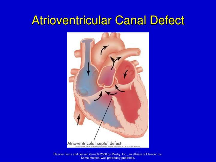 Atrioventricular Canal Defect