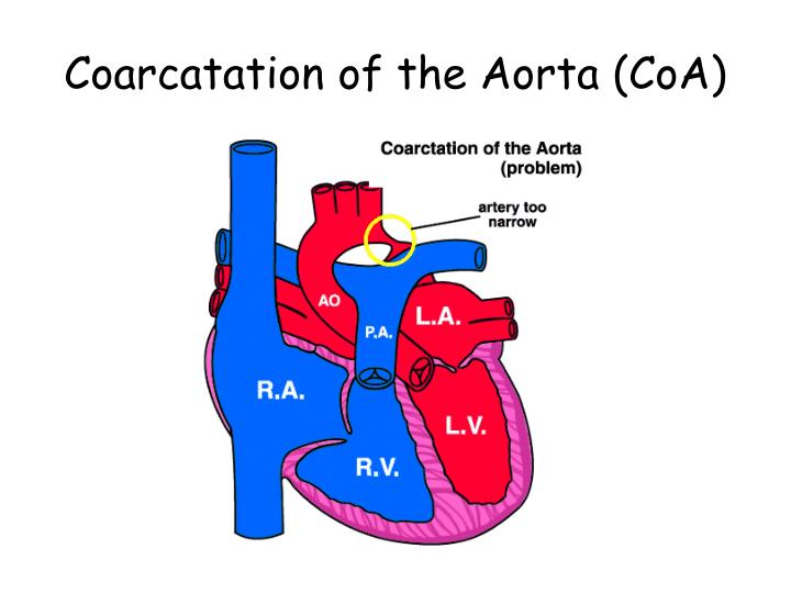 Coarcatation of the Aorta (CoA)