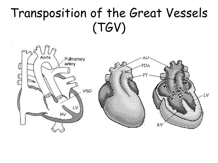 Transposition of the Great Vessels (TGV)