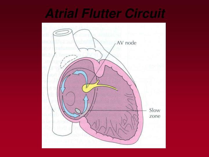 Atrial Flutter Circuit