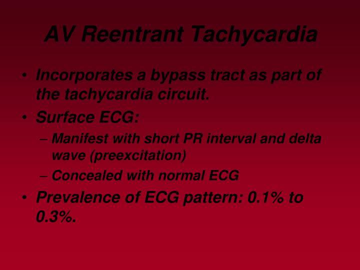 AV Reentrant Tachycardia