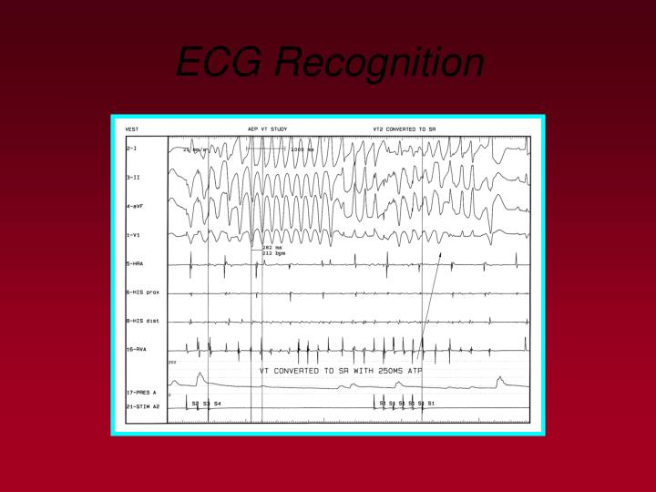 ECG Recognition