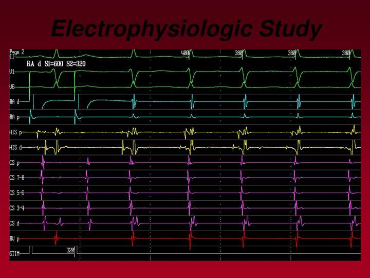 Electrophysiologic Study