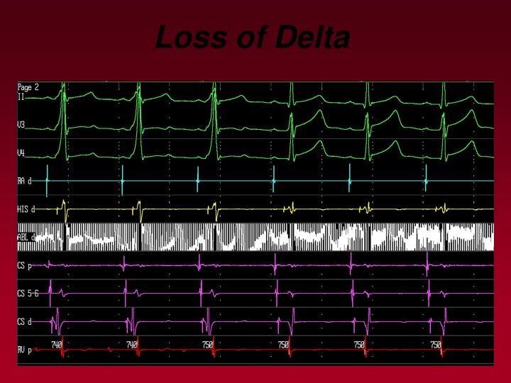Loss of Delta