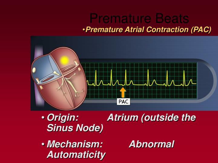 Premature Beats