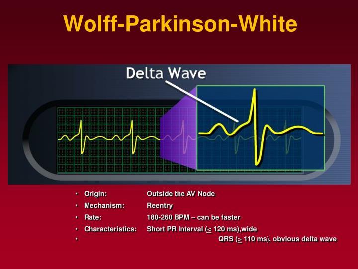 Wolff-Parkinson-White