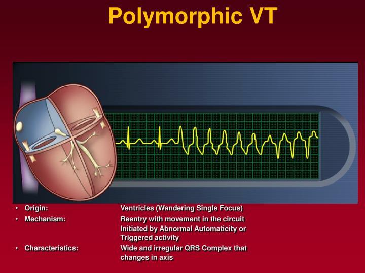 Polymorphic VT