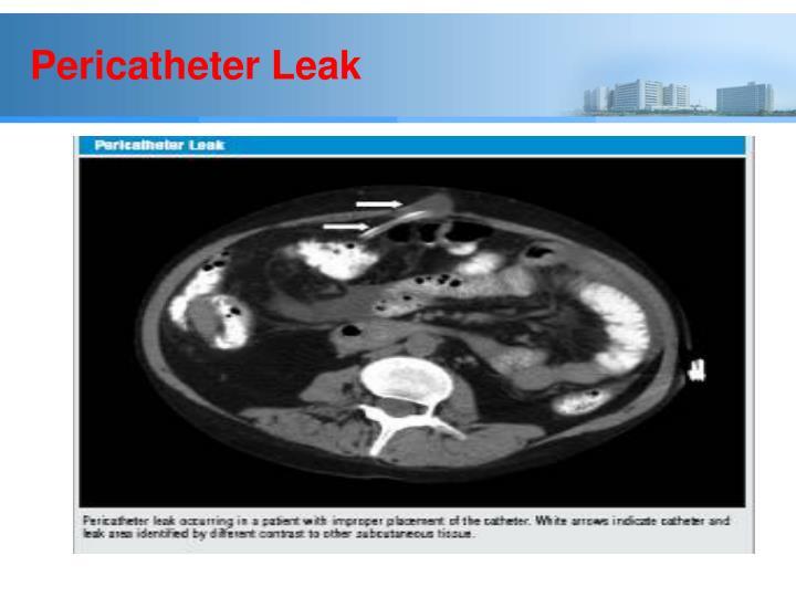 Pericatheter Leak