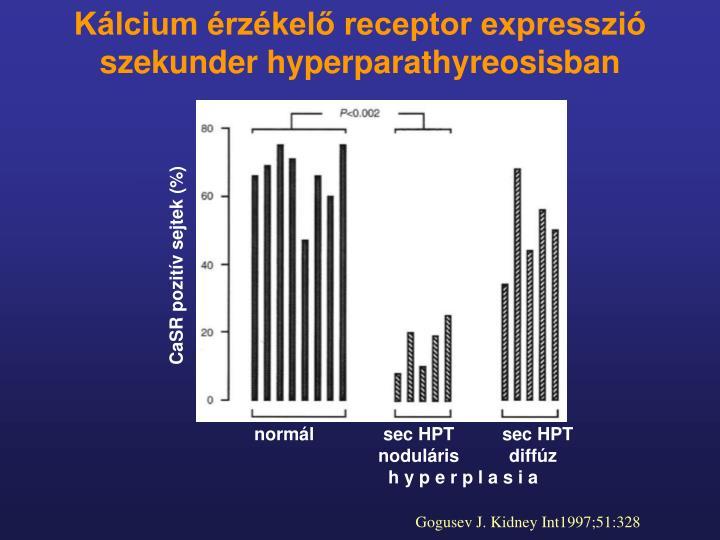 Kálcium érzékelő receptor expresszió szekunder hyperparathyreosisban