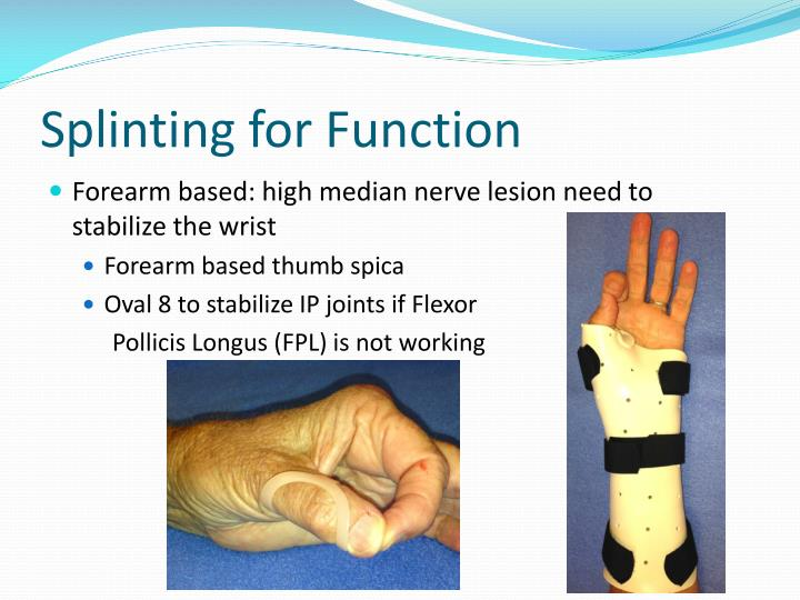 Splinting for Function