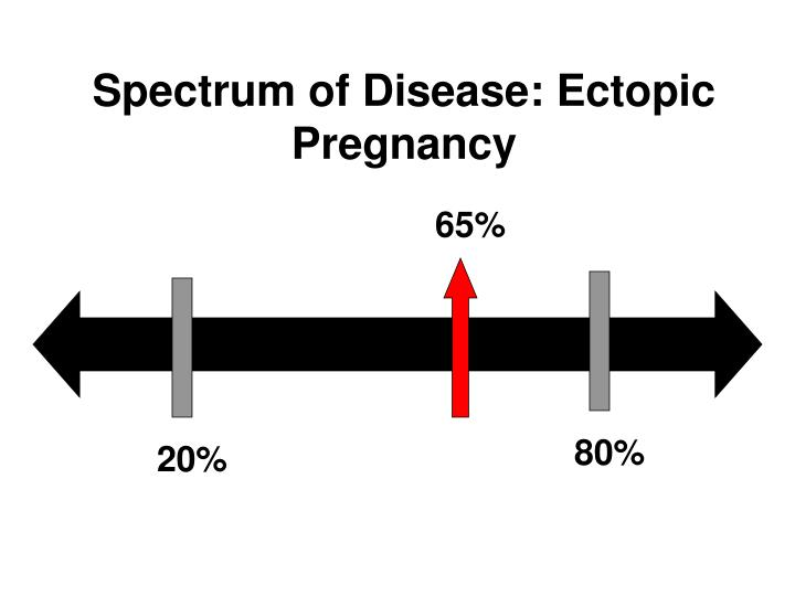 Spectrum of Disease: Ectopic Pregnancy