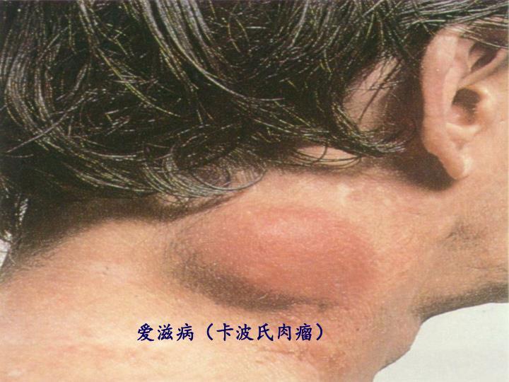 爱滋病(卡波氏肉瘤)