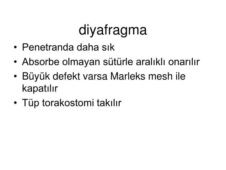 diyafragma