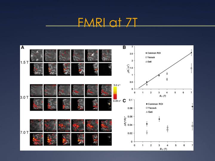 FMRI at 7T