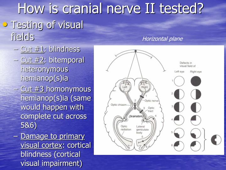 How is cranial nerve II tested?