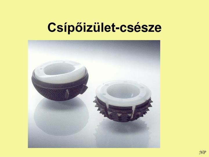 Csípőizület-csésze