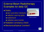 external beam radiotherapy examples for daily qc