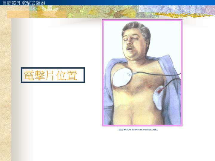 自動體外電擊去顫器