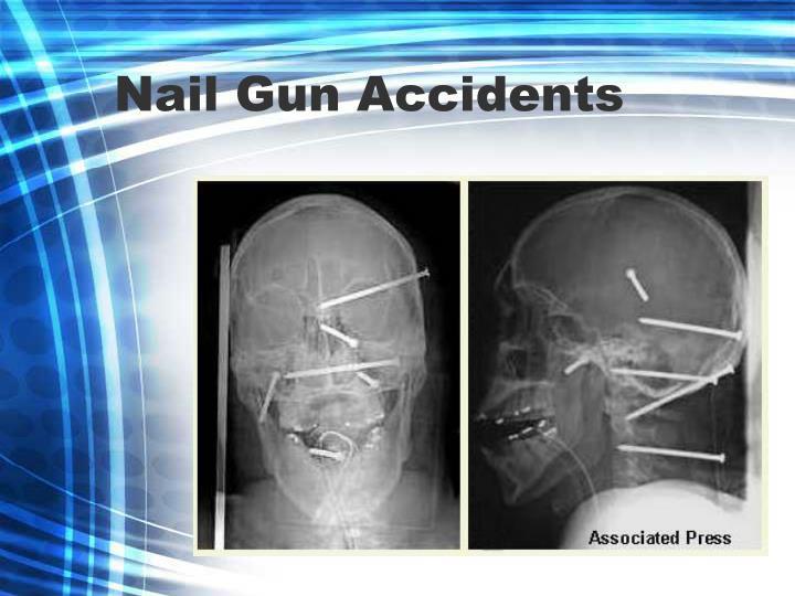 Nail Gun Accidents