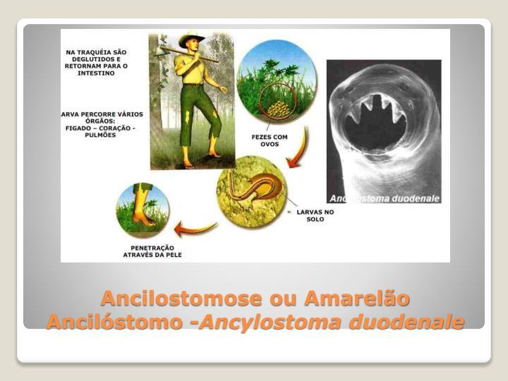 Ancilostomose ou Amarelão