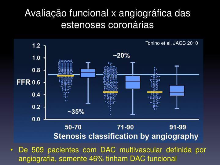 Avaliação funcional x angiográfica das estenoses coronárias