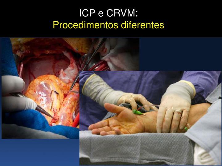 ICP e CRVM: