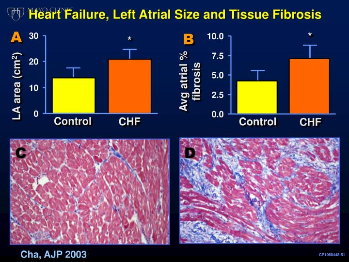 Heart Failure, Left Atrial Size and Tissue Fibrosis