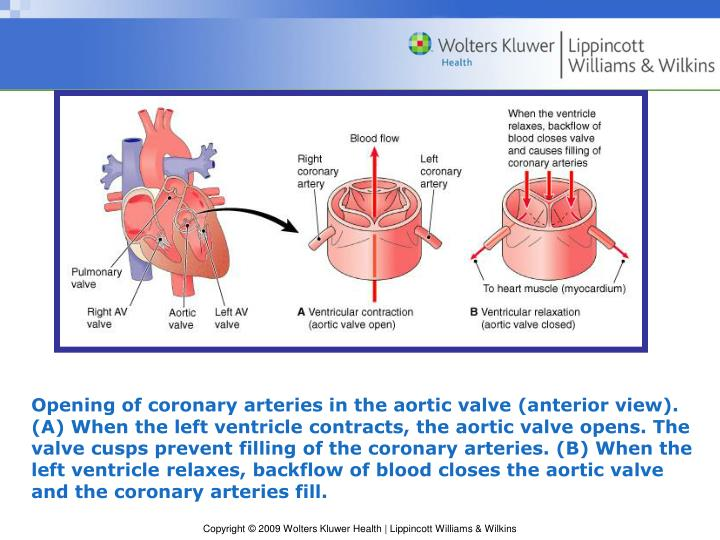 Opening of coronary arteries in the aortic valve (anterior view). (A) When the left ventricle contracts, the aortic valve opens. The valve cusps prevent filling of the coronary arteries. (B) When the left ventricle relaxes, backflow of blood closes the aortic valve and the coronary arteries fill.