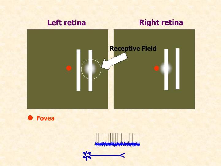 Right retina