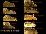premolars molars2