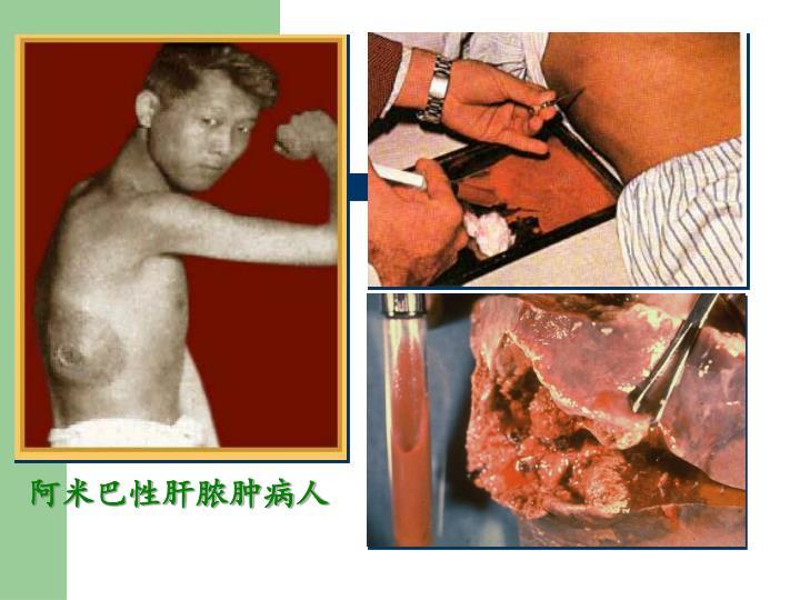 阿米巴性肝脓肿病人