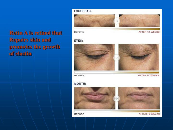 Retin A is retinol that Repairs skin and promotes the growth of elastin