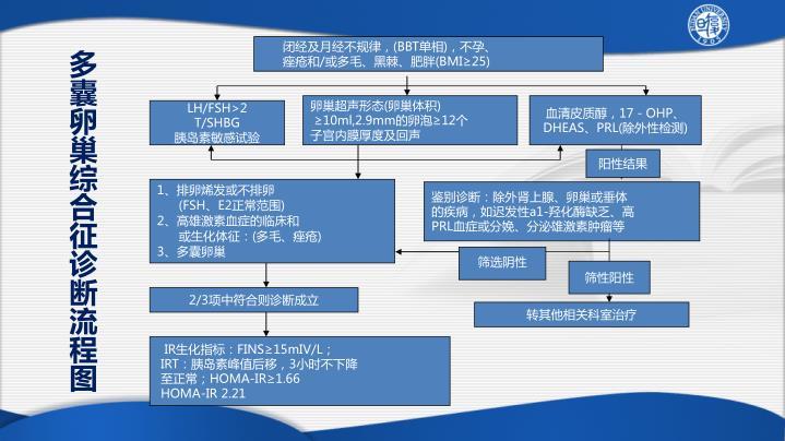 多囊卵巢综合征诊断流程图
