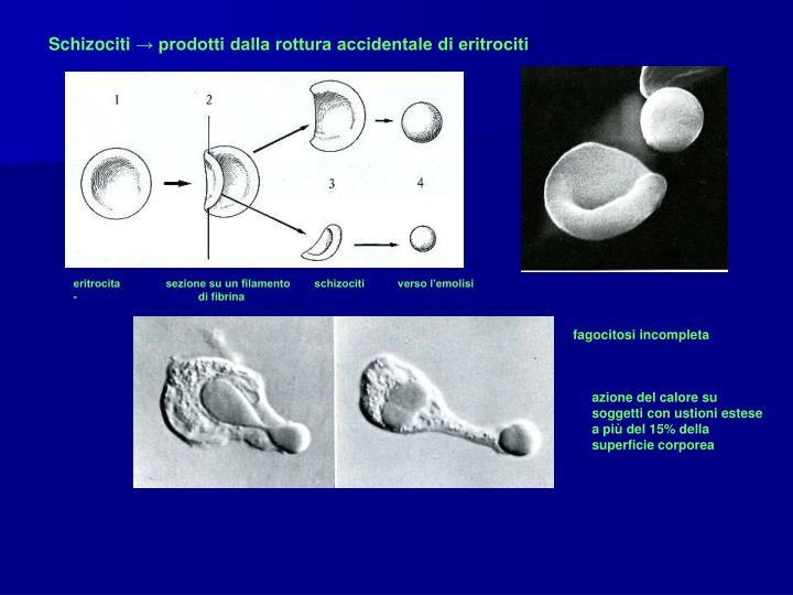 eritrocita               sezione su un filamento        schizociti           verso l'emolisi               -                                        di fibrina