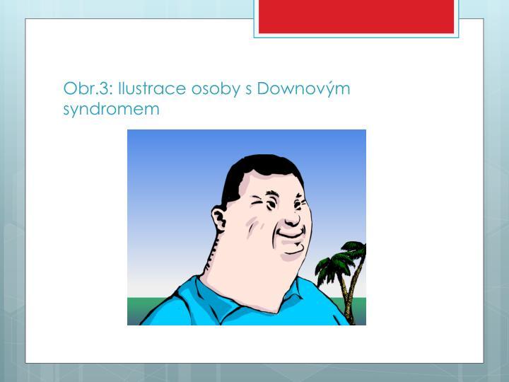 Obr.3: Ilustrace osoby s Downovým syndromem