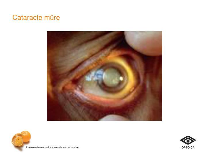 Cataracte mûre