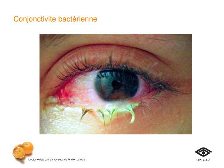 Conjonctivite bactérienne