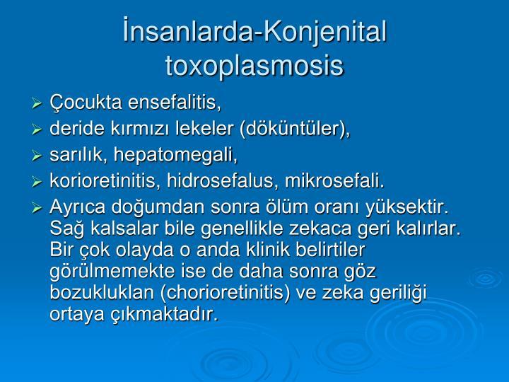 İnsanlarda-Konjenital toxoplasmosis