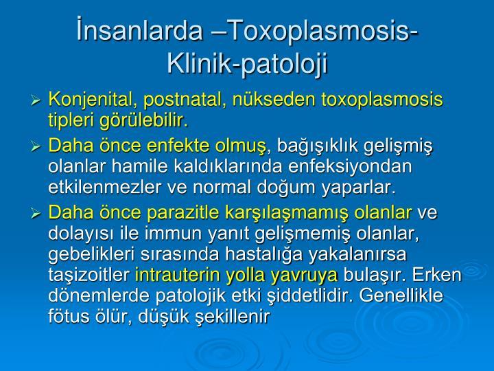 İnsanlarda –Toxoplasmosis-