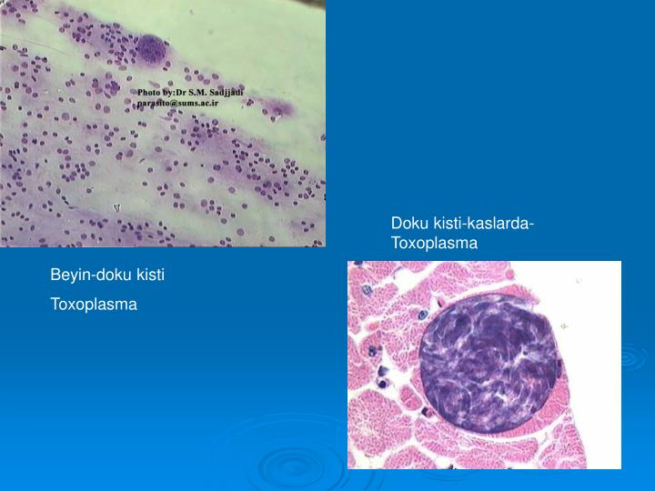 Doku kisti-kaslarda-Toxoplasma