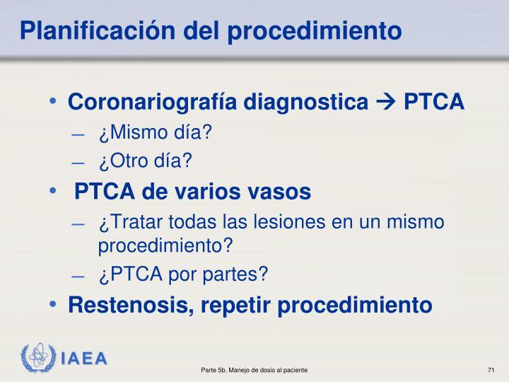 Planificación del procedimiento